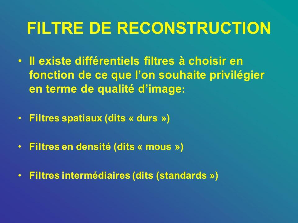 FILTRE DE RECONSTRUCTION Il existe différentiels filtres à choisir en fonction de ce que lon souhaite privilégier en terme de qualité dimage : Filtres