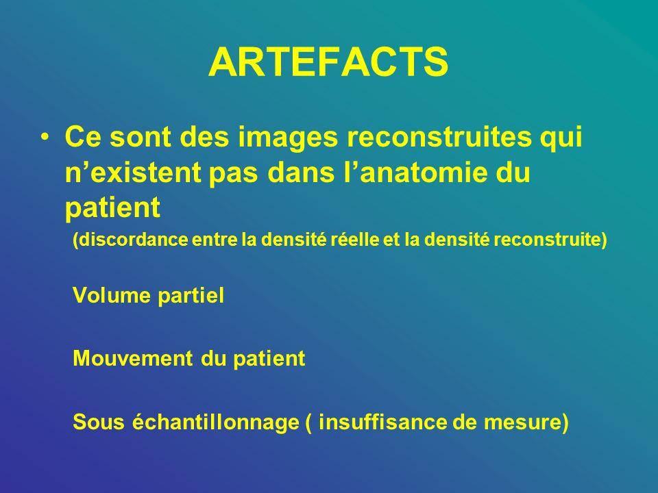 ARTEFACTS Ce sont des images reconstruites qui nexistent pas dans lanatomie du patient (discordance entre la densité réelle et la densité reconstruite