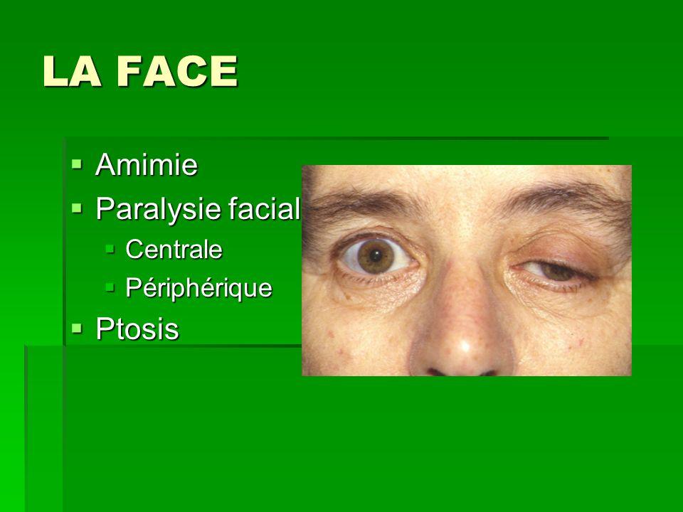LA FACE Amimie Amimie Paralysie faciale Paralysie faciale Centrale Centrale Périphérique Périphérique Ptosis Ptosis