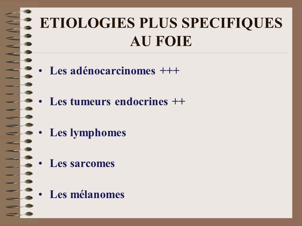 ETIOLOGIES PLUS SPECIFIQUES AU FOIE Les adénocarcinomes +++ Les tumeurs endocrines ++ Les lymphomes Les sarcomes Les mélanomes