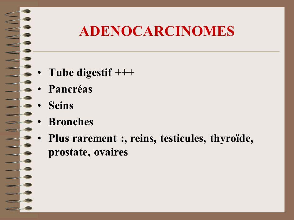 ADENOCARCINOMES Tube digestif +++ Pancréas Seins Bronches Plus rarement :, reins, testicules, thyroïde, prostate, ovaires