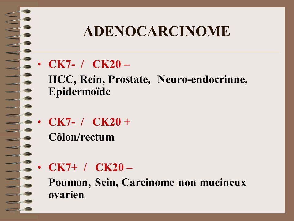 ADENOCARCINOME CK7- / CK20 – HCC, Rein, Prostate, Neuro-endocrinne, Epidermoïde CK7- / CK20 + Côlon/rectum CK7+ / CK20 – Poumon, Sein, Carcinome non m