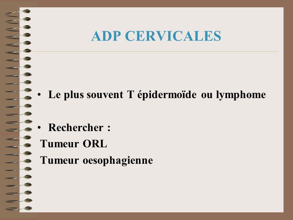 ADP CERVICALES Le plus souvent T épidermoïde ou lymphome Rechercher : Tumeur ORL Tumeur oesophagienne