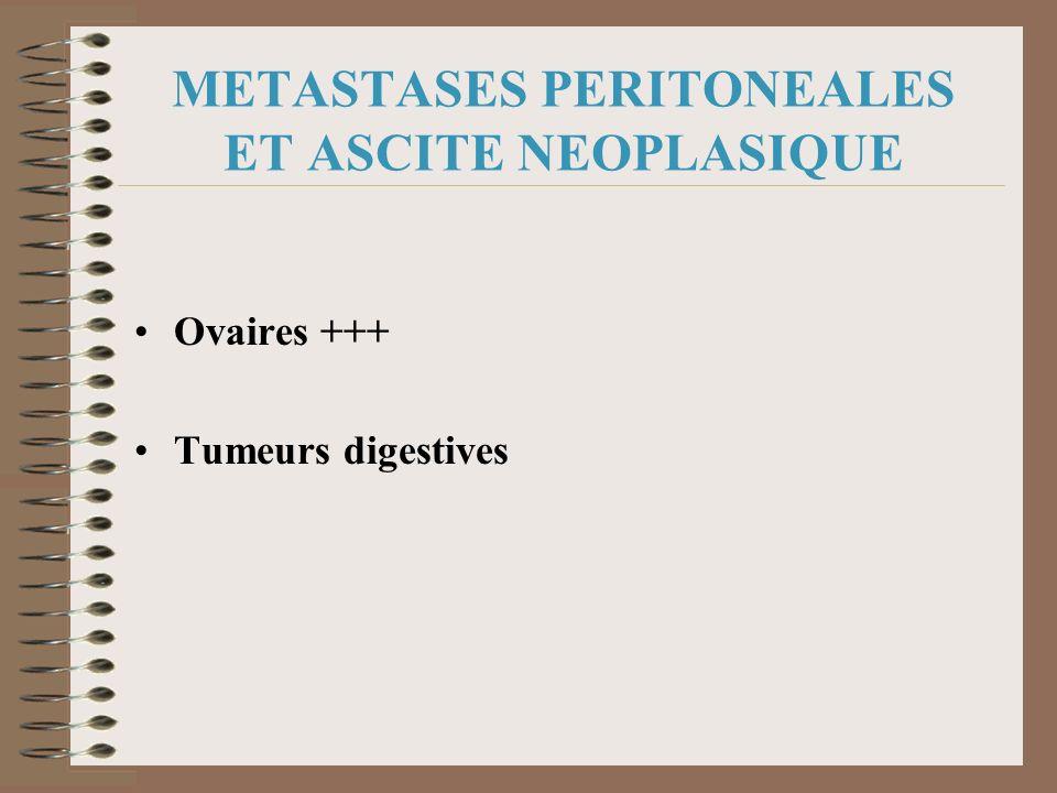 METASTASES PERITONEALES ET ASCITE NEOPLASIQUE Ovaires +++ Tumeurs digestives