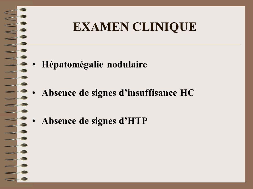 EXAMEN CLINIQUE Hépatomégalie nodulaire Absence de signes dinsuffisance HC Absence de signes dHTP