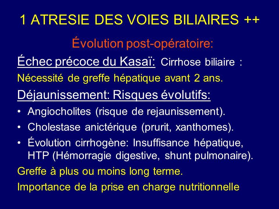 1 ATRESIE DES VOIES BILIAIRES ++ Évolution post-opératoire: Échec précoce du Kasaï: Cirrhose biliaire : Nécessité de greffe hépatique avant 2 ans. Déj