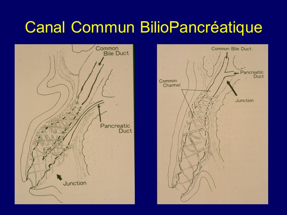 Canal Commun BilioPancréatique