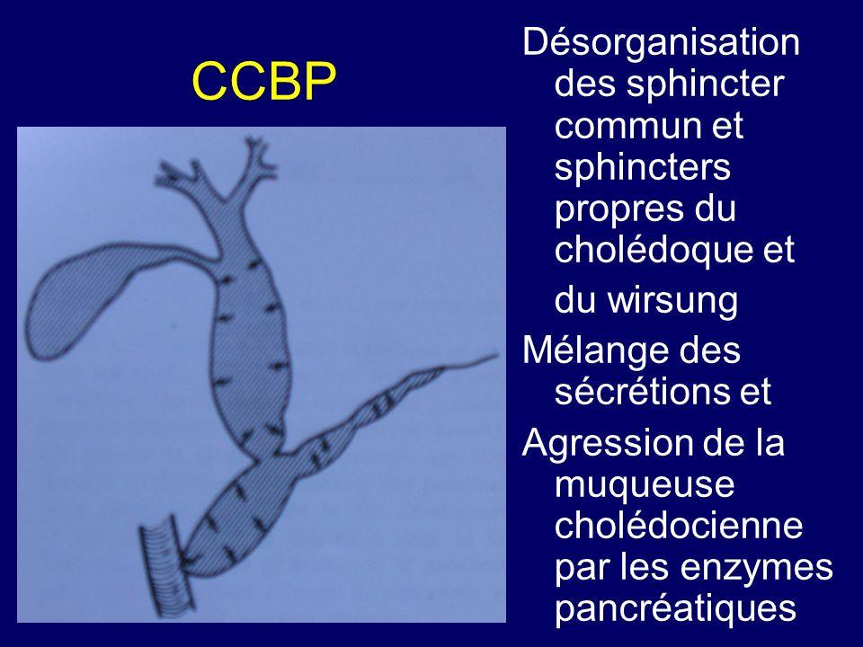CCBP Désorganisation des sphincter commun et sphincters propres du cholédoque et du wirsung Mélange des sécrétions et Agression de la muqueuse cholédo