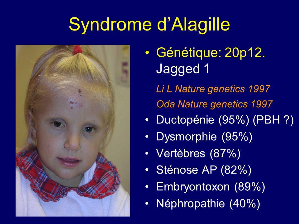 Syndrome dAlagille Génétique: 20p12. Jagged 1 Li L Nature genetics 1997 Oda Nature genetics 1997 Ductopénie (95%) (PBH ?) Dysmorphie (95%) Vertèbres (