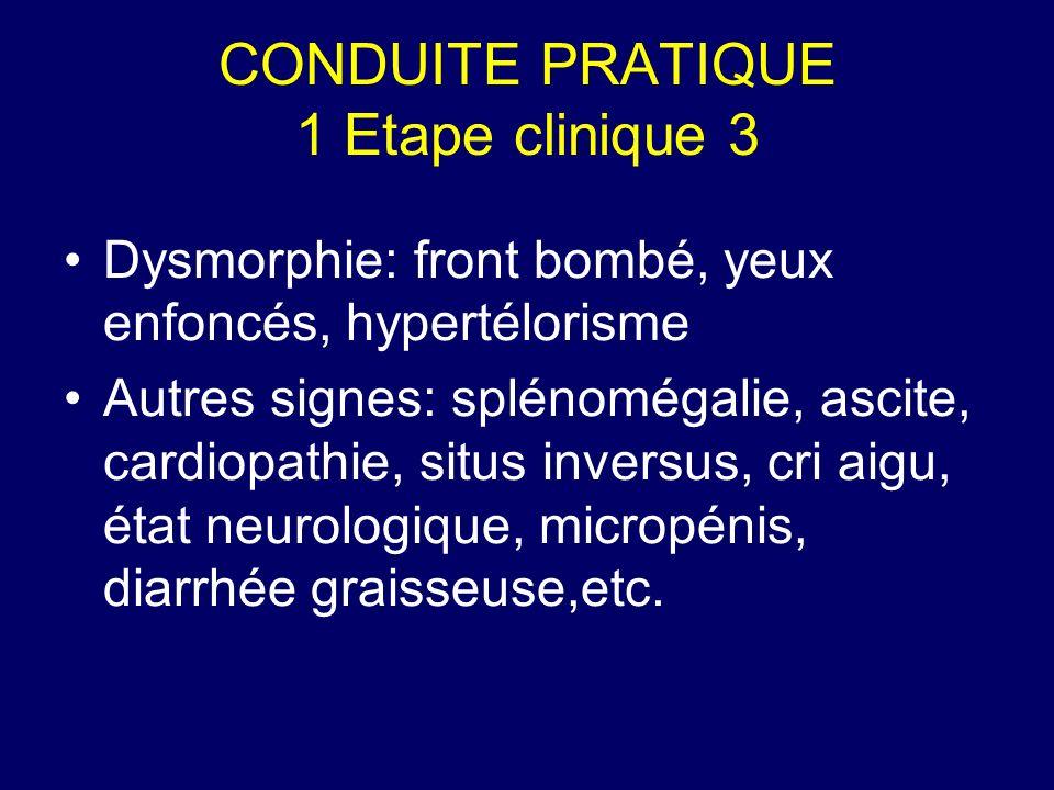 CONDUITE PRATIQUE 1 Etape clinique 3 Dysmorphie: front bombé, yeux enfoncés, hypertélorisme Autres signes: splénomégalie, ascite, cardiopathie, situs