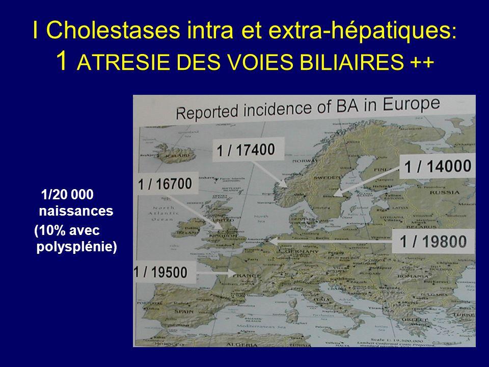 I Cholestases intra et extra-hépatiques : 1 ATRESIE DES VOIES BILIAIRES ++ 1/20 000 naissances (10% avec polysplénie)