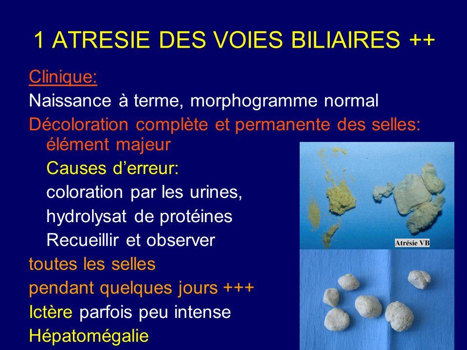 1 ATRESIE DES VOIES BILIAIRES ++ Clinique: Naissance à terme, morphogramme normal Décoloration complète et permanente des selles: élément majeur Cause