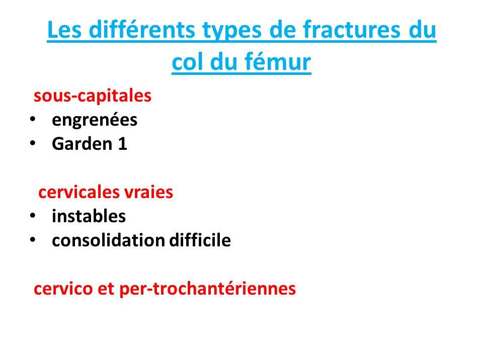 Les différents types de fractures du col du fémur sous-capitales engrenées Garden 1 cervicales vraies instables consolidation difficile cervico et per-trochantériennes