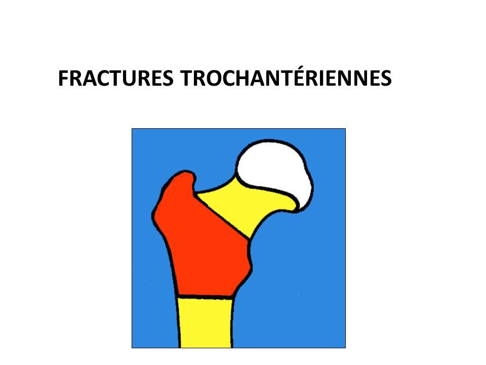 FRACTURES TROCHANTÉRIENNES