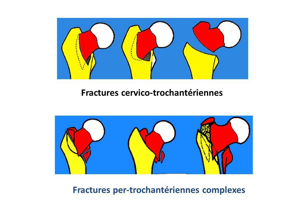 Fractures cervico-trochantériennes Fractures per-trochantériennes complexes