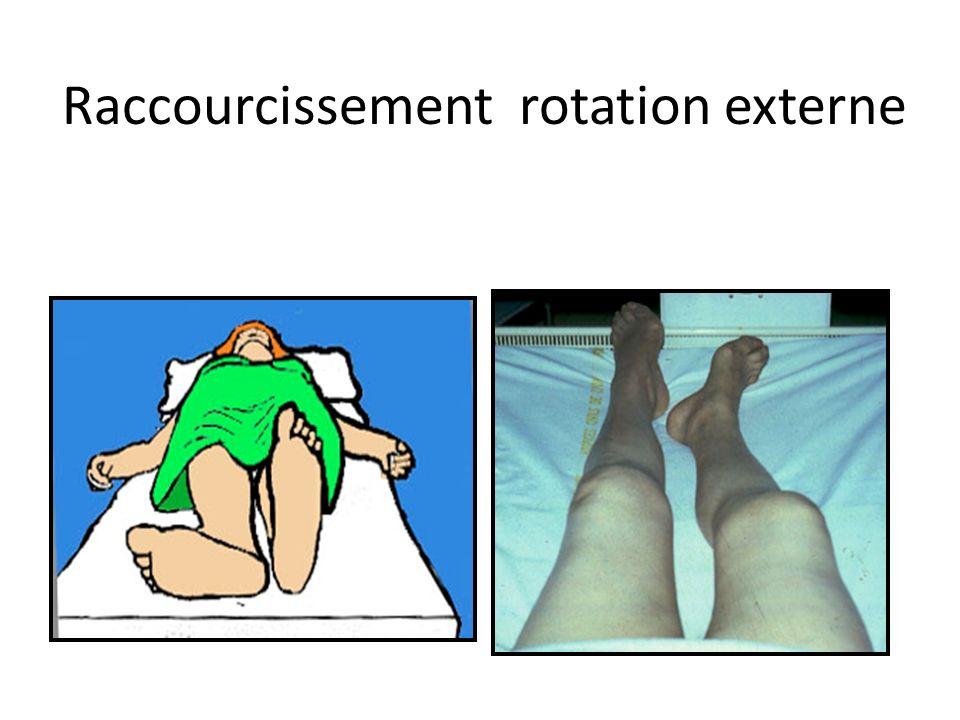 Raccourcissement rotation externe