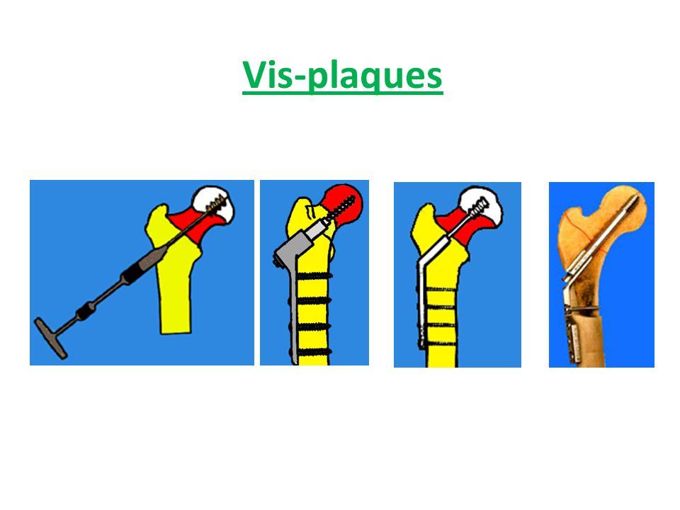 Vis-plaques