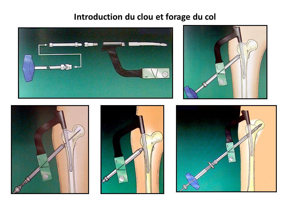 Introduction du clou et forage du col