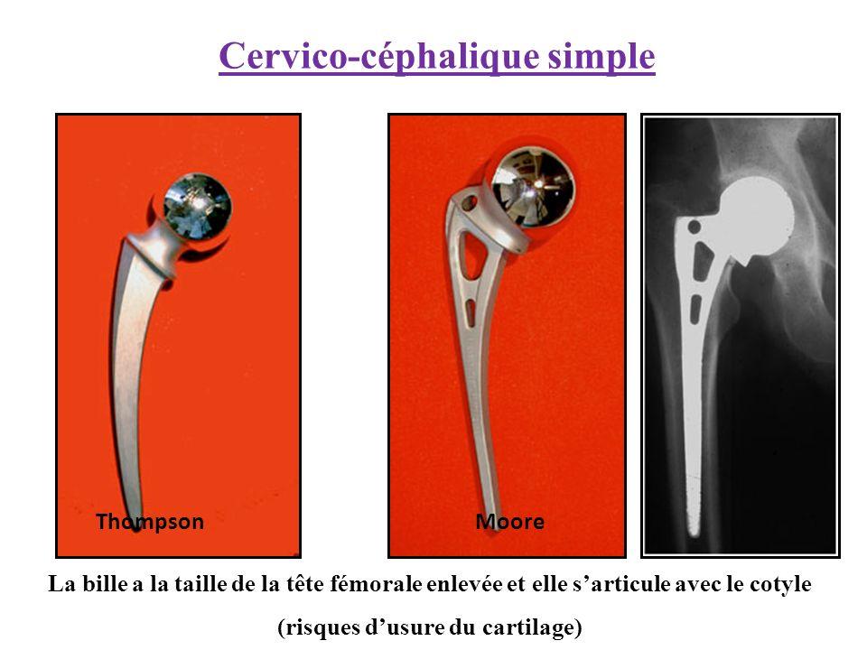 Cervico-céphalique simple Thompson Moore La bille a la taille de la tête fémorale enlevée et elle sarticule avec le cotyle (risques dusure du cartilage)