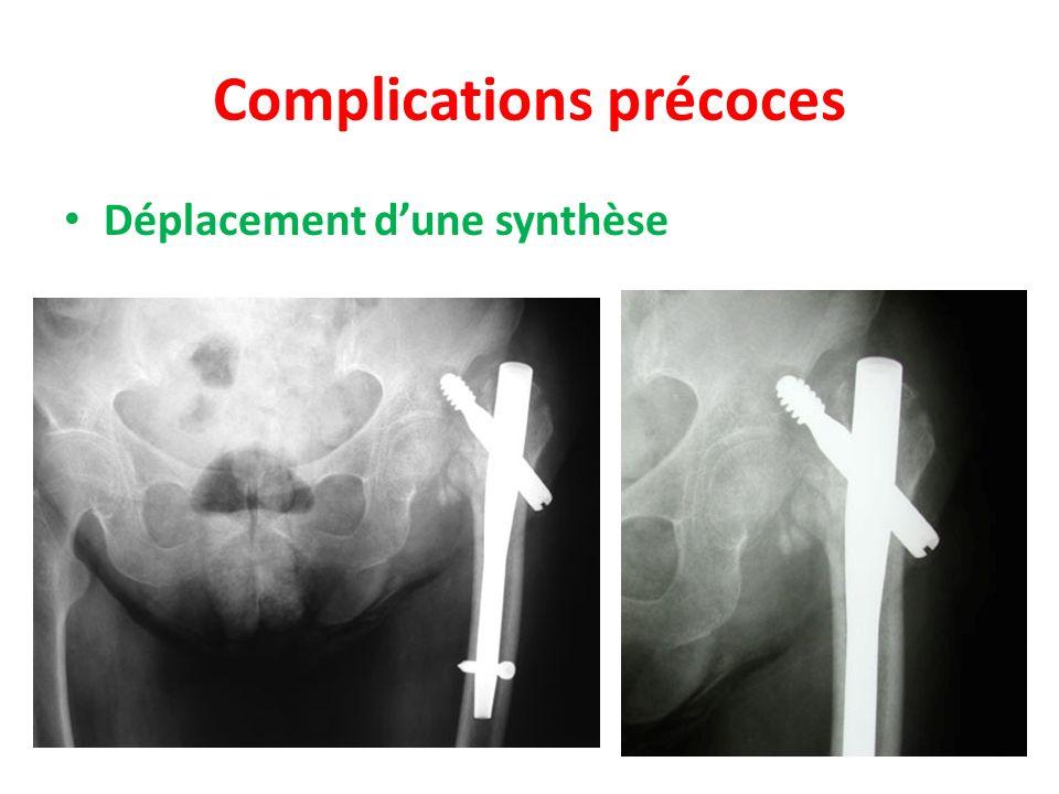 Complications précoces Déplacement dune synthèse