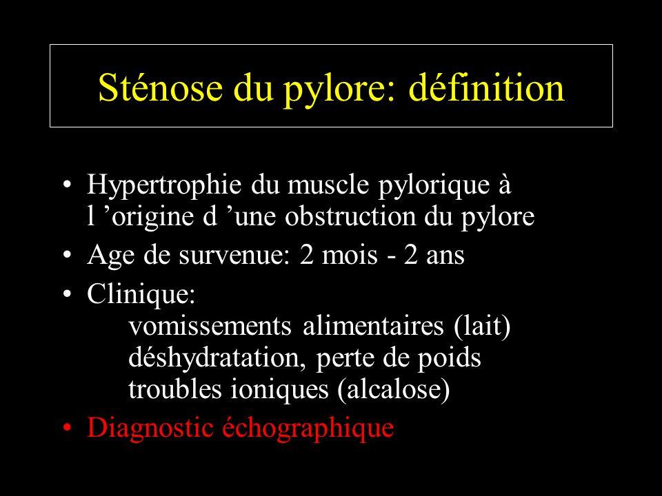 Sténose du pylore: définition Hypertrophie du muscle pylorique à l origine d une obstruction du pylore Age de survenue: 2 mois - 2 ans Clinique: vomis