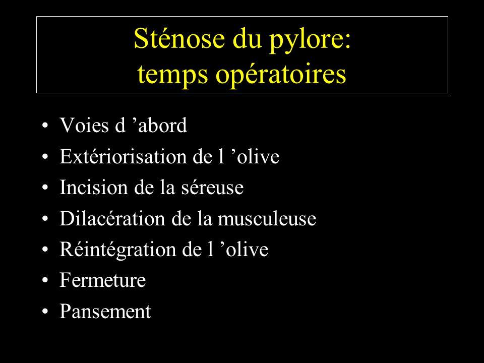Sténose du pylore: temps opératoires Voies d abord Extériorisation de l olive Incision de la séreuse Dilacération de la musculeuse Réintégration de l