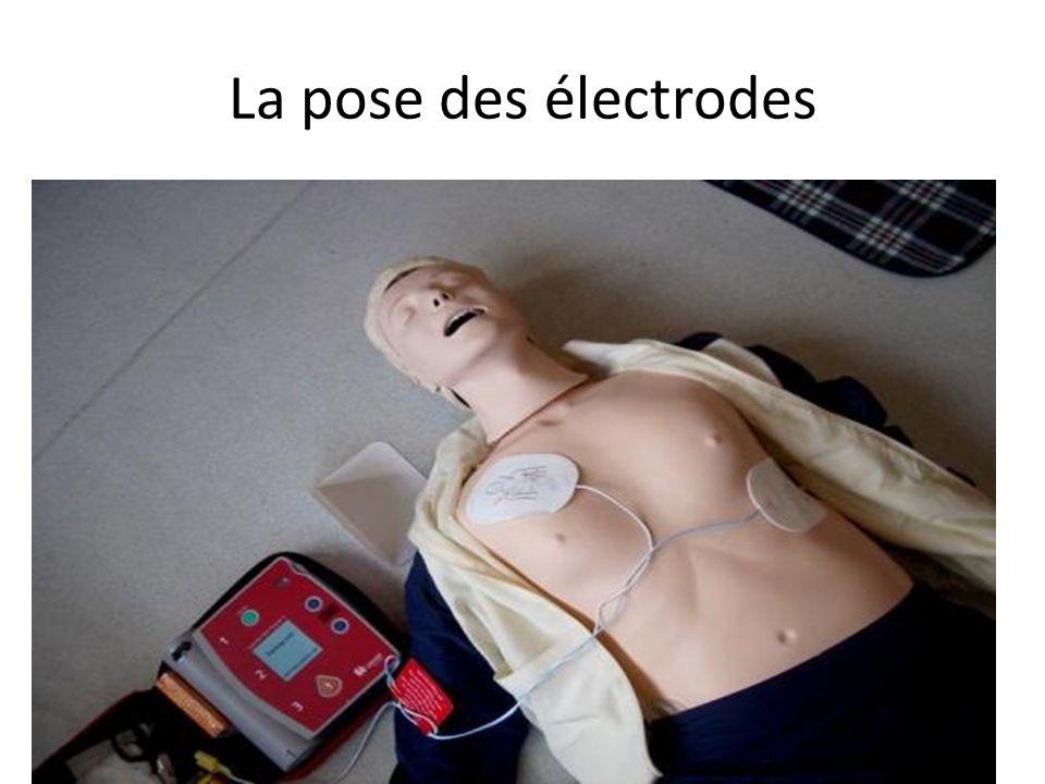 La pose des électrodes