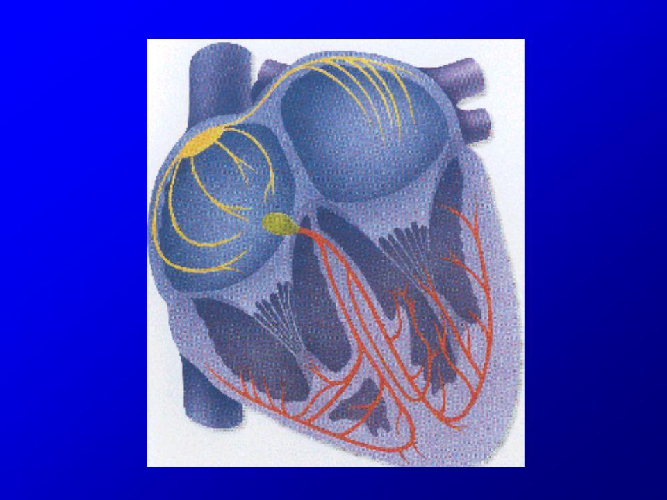 Fibrillation et flutter auriculaire complications Diminution du débit cardiaque ( 20%) Thromboses intra-auriculaires, embolies : –Cérébrales AVC, AIT –Ischémie aiguë des Mb Inférieurs –Embolies pulmonaires paradoxales au travers dun foramen ovale perméable