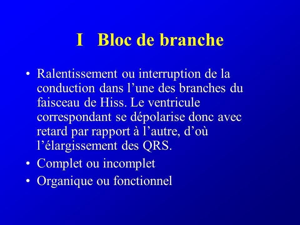 Bloc de branche complet Durée du QRS > 0,12 s BBG complet –R exclusif en V6 et DI –QS en V1 V2 V3 BBD complet –rSr en V1 –Onde S « traînante » en DI et V6