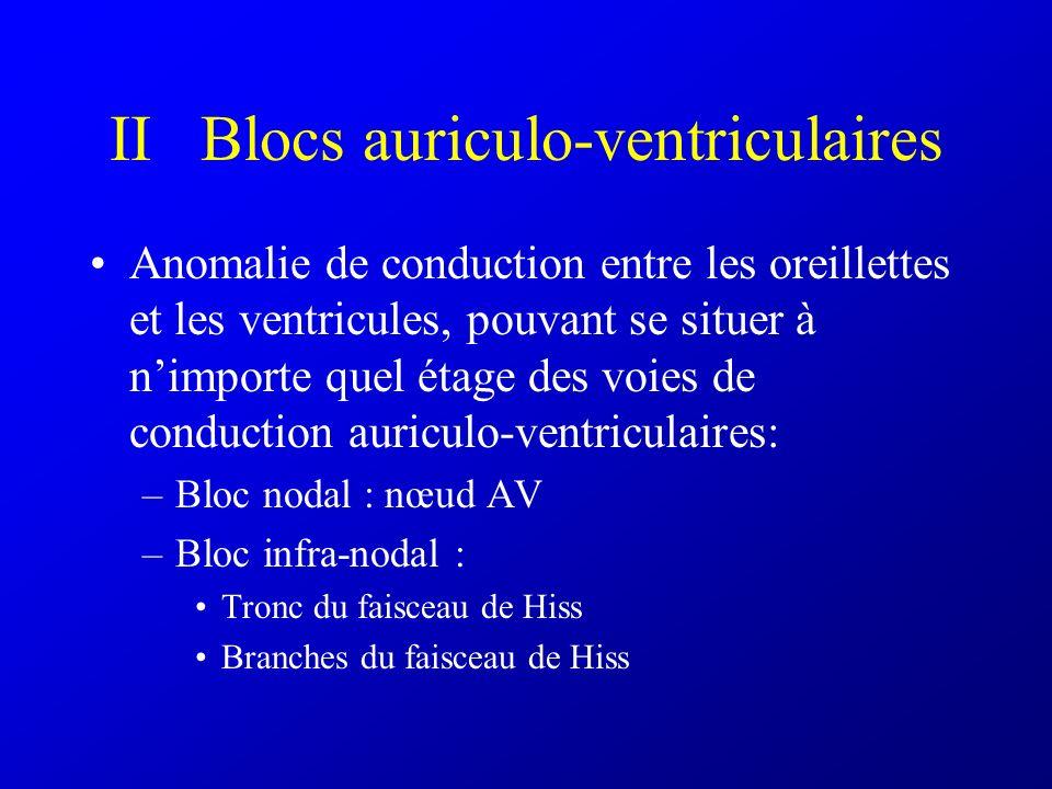 VI Fibrillation et flutter auriculaire A)Fibrillation auriculaire : –Tachycardie irrégulière à QRS fins –Pas dondes P, trémulations de la ligne iso électrique