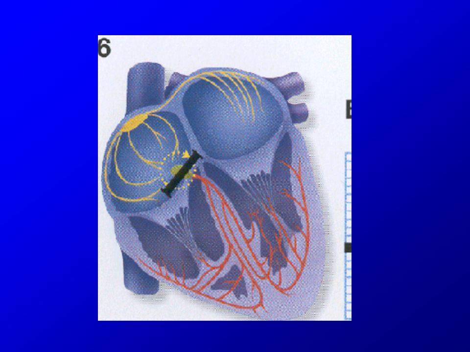 Blocs auriculo-ventriculaires : classification BAV du premier degré Allongement du PR > 0,2 s BAV du second degré –Mobitz I : allongement progressif du PR, jusquà la survenue dune onde P bloquée.