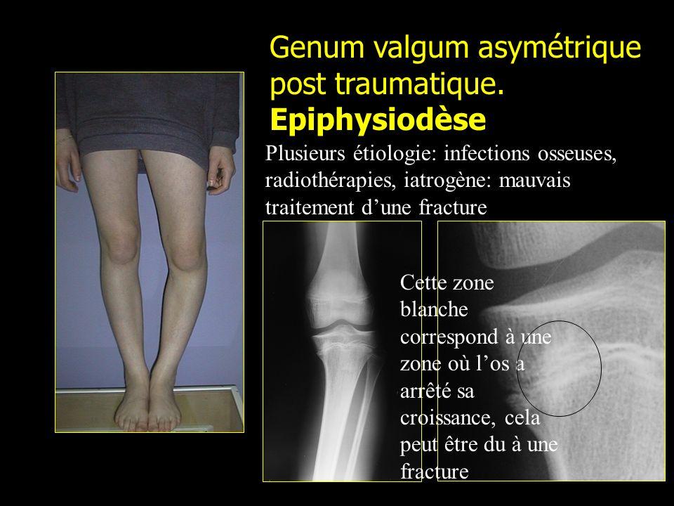 Genum valgum asymétrique post traumatique. Epiphysiodèse Cette zone blanche correspond à une zone où los a arrêté sa croissance, cela peut être du à u