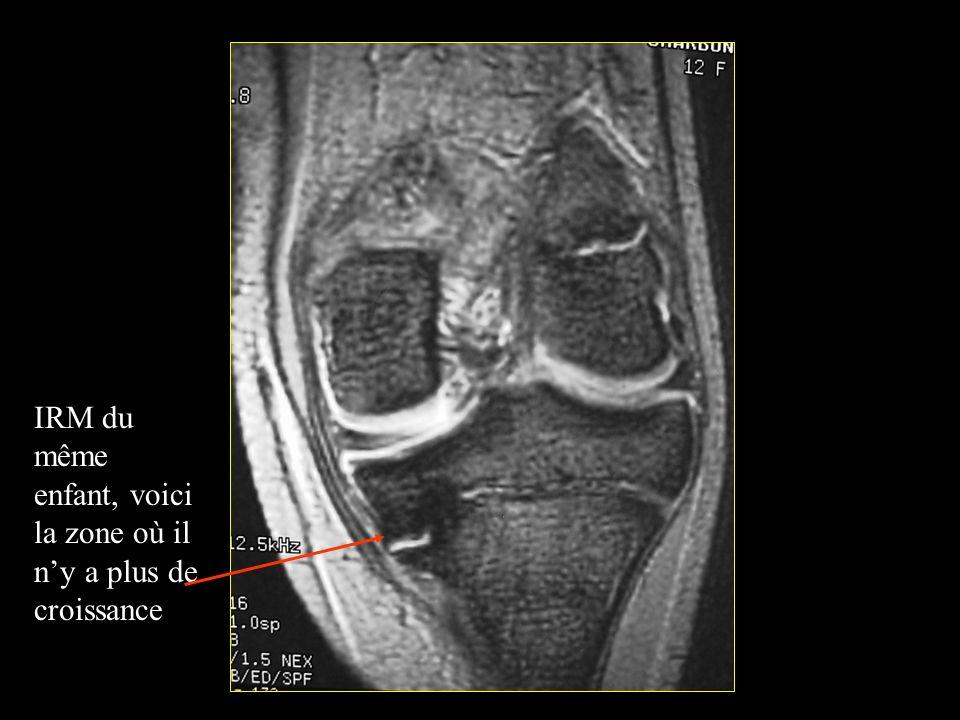 IRM du même enfant, voici la zone où il ny a plus de croissance