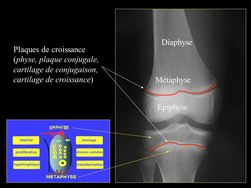 Plaques de croissance (physe, plaque conjugale, cartilage de conjugaison, cartilage de croissance) Diaphyse Métaphyse Epiphyse
