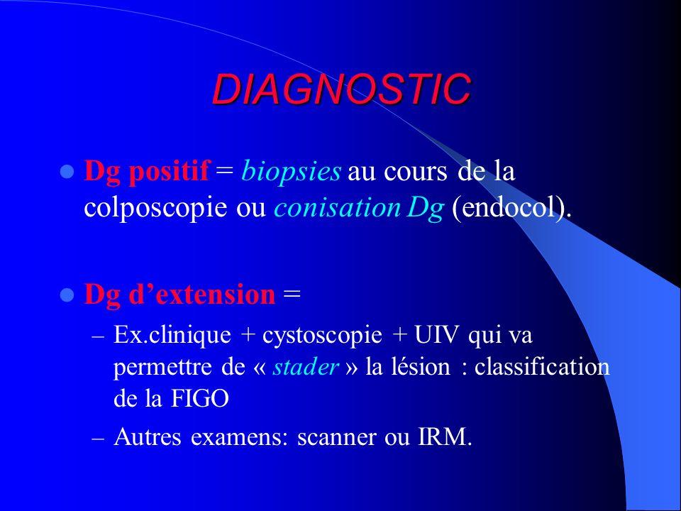 DIAGNOSTIC Dg positif = biopsies au cours de la colposcopie ou conisation Dg (endocol). Dg dextension = – Ex.clinique + cystoscopie + UIV qui va perme