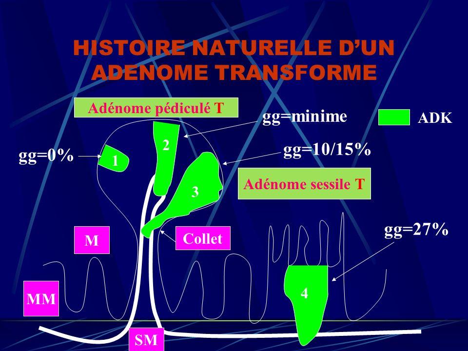 HISTOIRE NATURELLE DUN ADENOME TRANSFORME 2 1 3 4 Adénome sessile T Adénome pédiculé T gg=minime gg=10/15% gg=27% gg=0% SM M MM Collet ADK