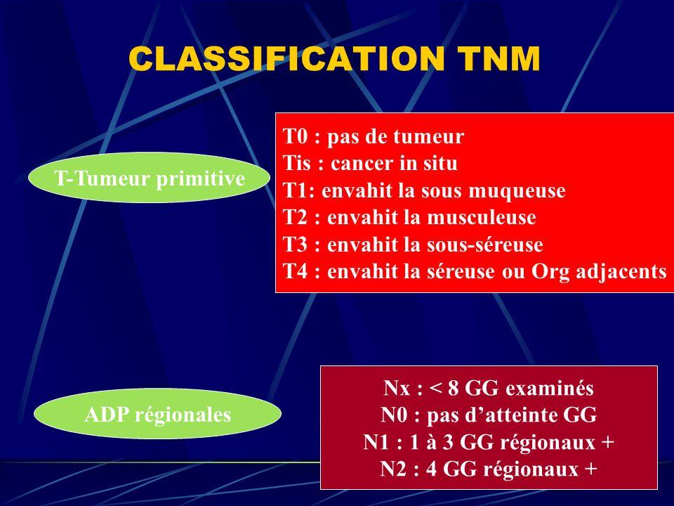 CLASSIFICATION TNM T-Tumeur primitive T0 : pas de tumeur Tis : cancer in situ T1: envahit la sous muqueuse T2 : envahit la musculeuse T3 : envahit la