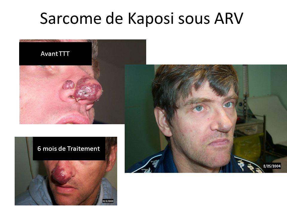 Sarcome de Kaposi sous ARV Avant TTT 6 mois de Traitement