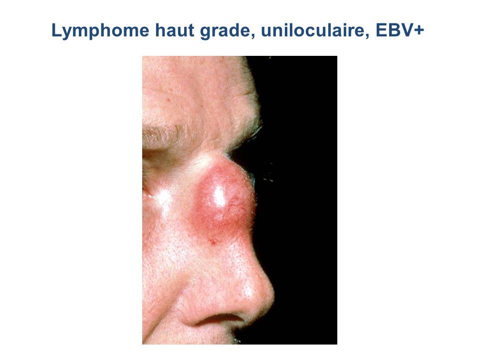 Lymphome haut grade, uniloculaire, EBV+