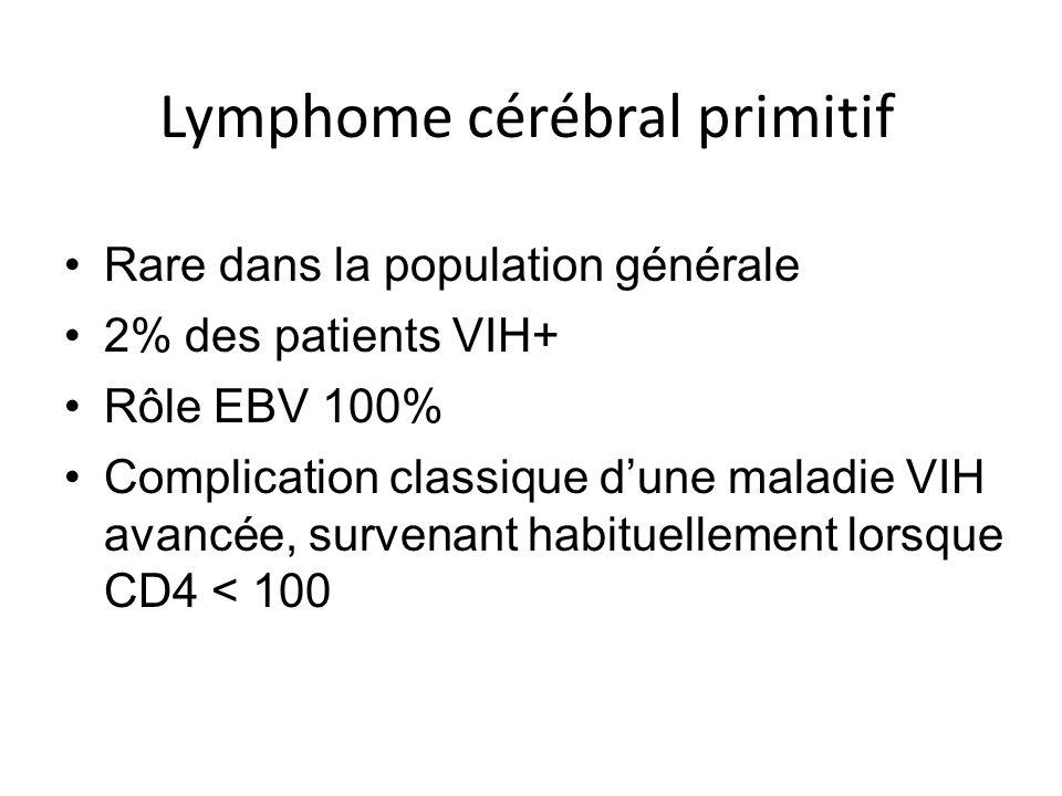Lymphome cérébral primitif Rare dans la population générale 2% des patients VIH+ Rôle EBV 100% Complication classique dune maladie VIH avancée, surven