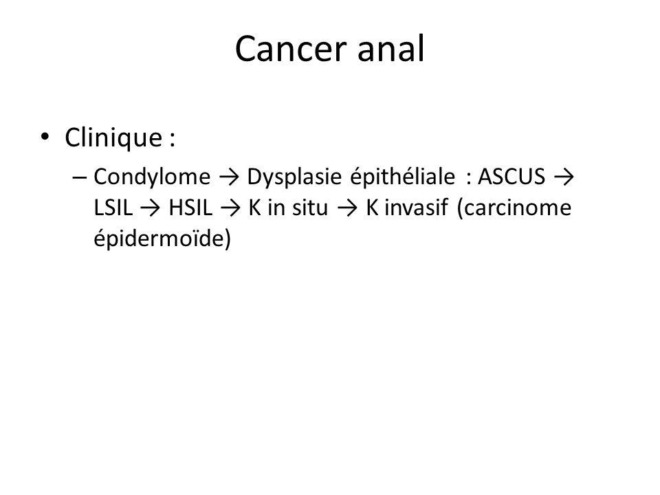 Cancer anal Clinique : – Condylome Dysplasie épithéliale : ASCUS LSIL HSIL K in situ K invasif (carcinome épidermoïde)