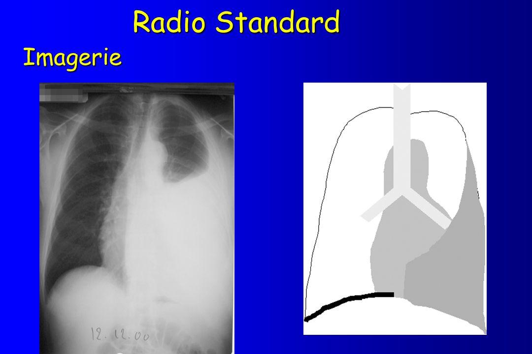 Radio Standard Imagerie