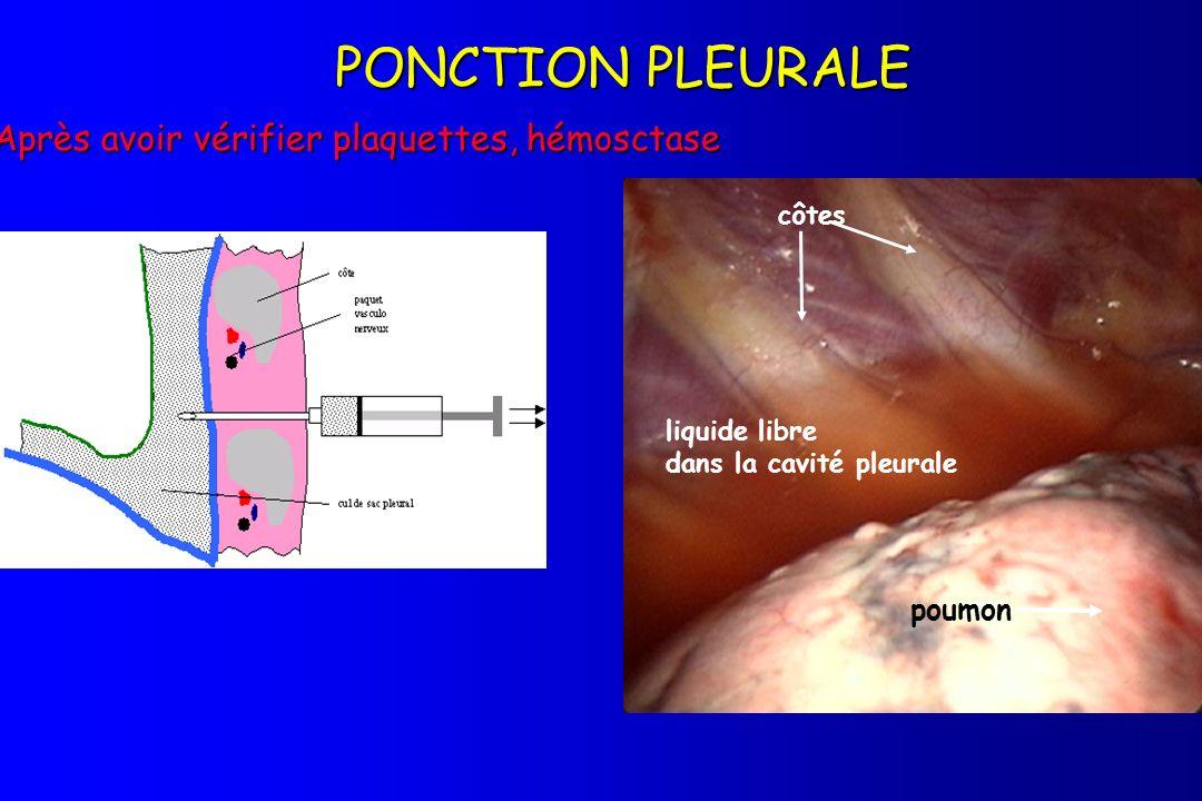 PONCTION PLEURALE Après avoir vérifier plaquettes, hémosctase liquide libre dans la cavité pleurale poumon côtes