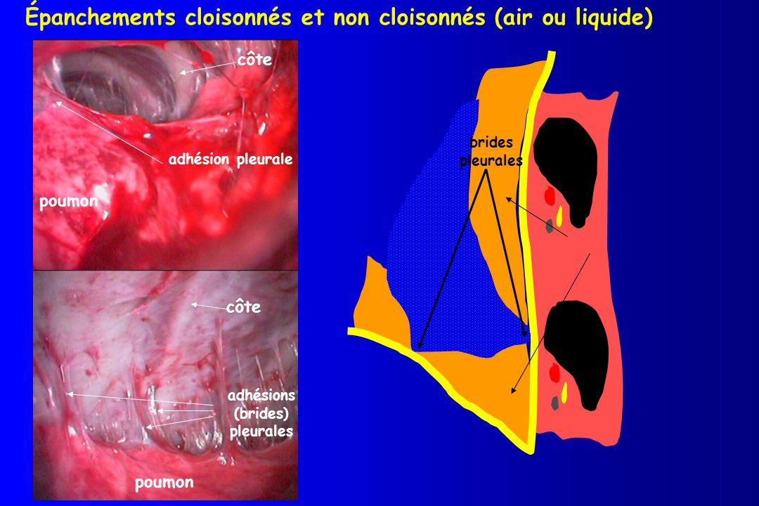 côte poumon adhésion pleurale côte poumon adhésions (brides) pleurales Épanchements cloisonnés et non cloisonnés (air ou liquide) brides pleurales