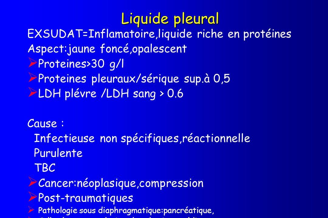 Liquide pleural EXSUDAT=Inflamatoire,liquide riche en protéines Aspect:jaune foncé,opalescent Proteines>30 g/l Proteines pleuraux/sérique sup.à 0,5 LD