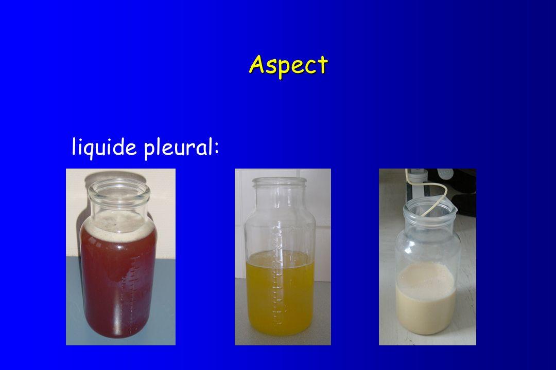 Aspect liquide pleural: