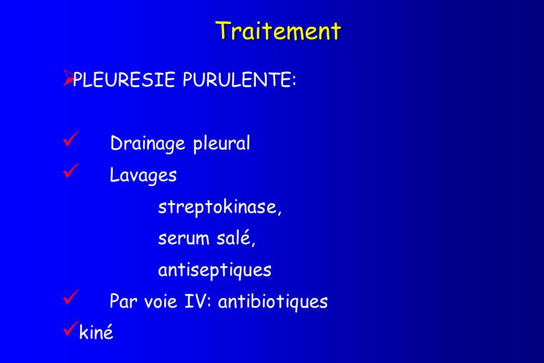 Traitement PLEURESIE PURULENTE: Drainage pleural Lavages streptokinase, serum salé, antiseptiques Par voie IV: antibiotiques kiné