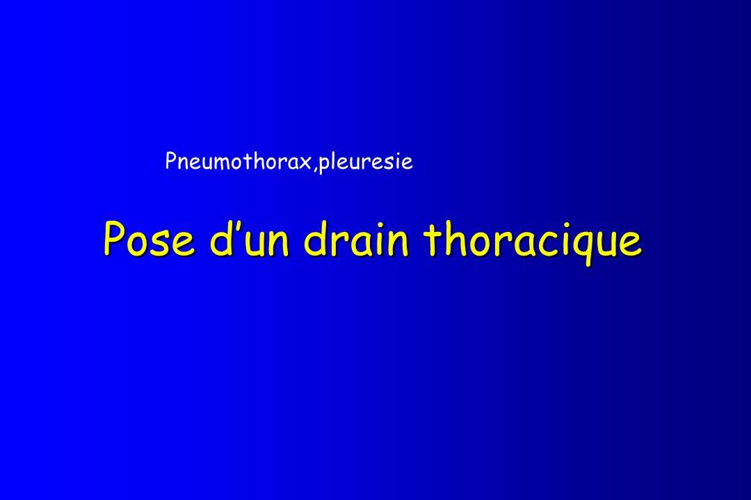 Pose dun drain thoracique Pneumothorax,pleuresie