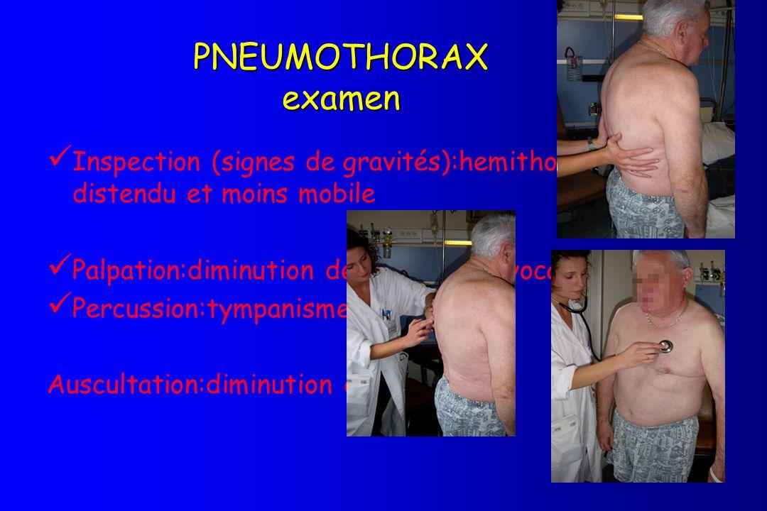 PNEUMOTHORAX examen Inspection (signes de gravités):hemithorax plus distendu et moins mobile Palpation:diminution des vibrations vocales Percussion:ty