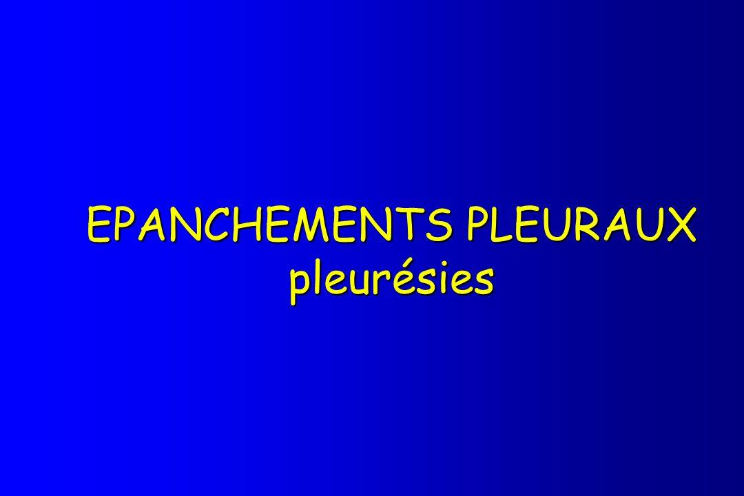 EPANCHEMENTS PLEURAUX pleurésies